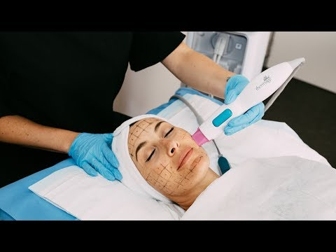 Thermage flx skin tightening - the clinic bondi junction